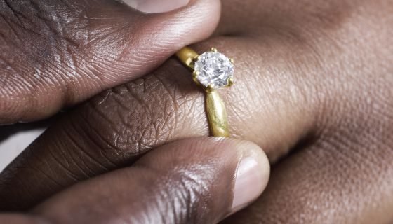 Are Dermal Diamond Piercings The New Way To Say 'I Do?'